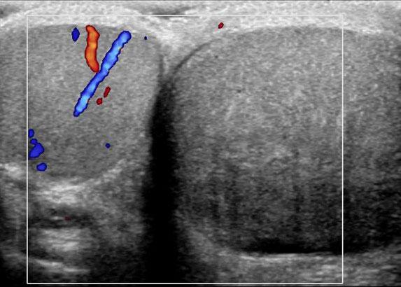 Right Kidney as seen on Ultrasound Examination